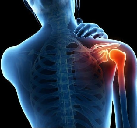 Thoracic outlet syndrome treatment