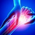 Hand Tumor