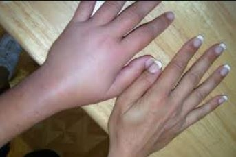 Wrist and hand area begins to swell and pain felt after a fall