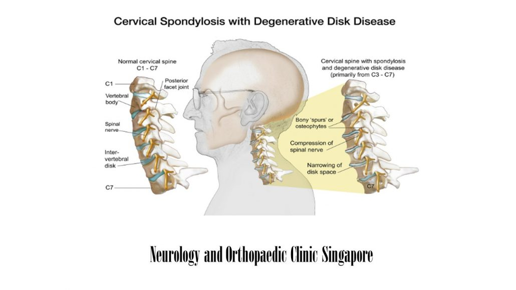Cervical spondylosis Main