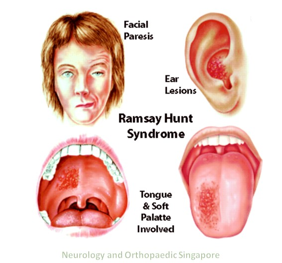 Ramsay hunt syndrome info