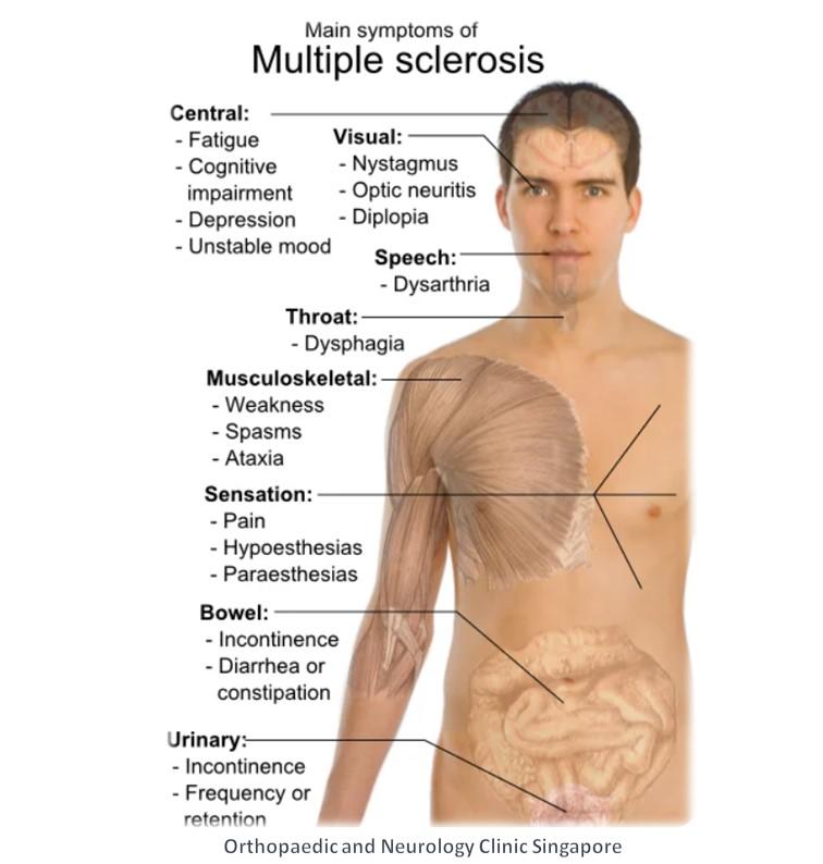 Multiple Sclerosis info
